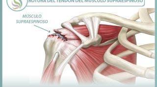 Rotura del  tendón del músculo supraespinoso, información y consejos para su prevención