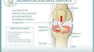 Conoce lo que supone una rotura de menisco, sus causas, consecuencias y tratamiento