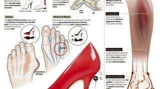 Consecuencias del abuso de los tacones. Daños en el tendón de Aquiles, juanetes, dedo martillo, neuroma de Morton