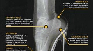 Juanetes, lesiones de tobillo, metatarsalgia, callosidades en el talón, deformidad ósea, consecuencia de los tacones