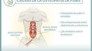 Causas de la osteopatía de pubis o pubalgia, una nueva visión