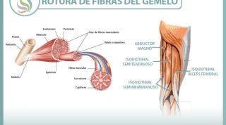 Rotura de fibras del gemelo o gastrocnemio, una lesión frecuente