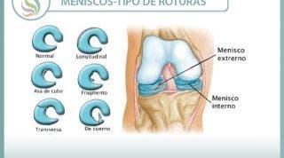 No hay dos rodillas iguales, ni dos lesiones de menisco iguales, aprende algunas diferencias