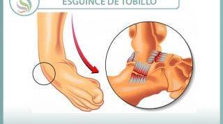 Esguince o torcedura de tobillo. 29 vídeos sobre esta lesión.