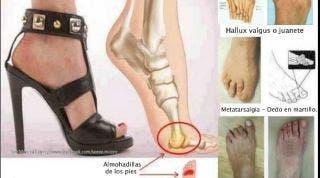 Metatarsalgias y juanetes por el uso de tacones