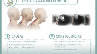 La rectificación cervical, una disfunción en auge, descubre qué es y a que se debe