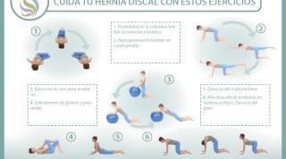 8 sencillos ejercicios para cuidar y mejorar la hernia discal