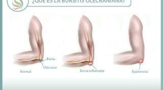 Descubriendo la bursitis olecraniana