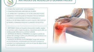 Todo lo que necesitas saber de la artrosis de rodilla o gonartrosis