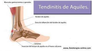 Tendinitis o tendinosis del tendón de Aquiles. Información, consejos y un útil automasaje