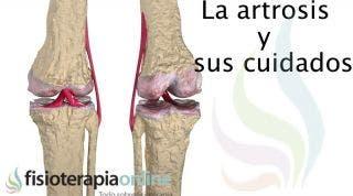 Cuida tu artrosis, te ofrecemos unos útiles consejos y recomendaciones