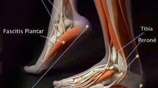 Lesiones y disfunciones del pie, conoce a los principales causantes