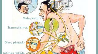 Lumbalgia, dolor lumbar o lumbago, descubre que es y como combatirlo
