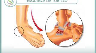 Esguince o torcedura de tobillo. 29 vídeos sobre esta lesión