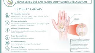 El síndrome del túnel carpiano y el ligamento transverso del carpo, aprende qué son y cómo se relacionan