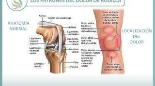 Los patrones del dolor de rodilla o gonalgia y las lesiones más comunes