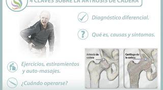 4 claves sobre la artrosis de cadera