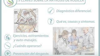 5 claves sobre la artrosis de rodilla