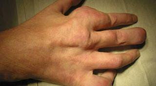 ¿Conoces la enfermedad de Gota? Aquí te damos toda la información que necesitas saber
