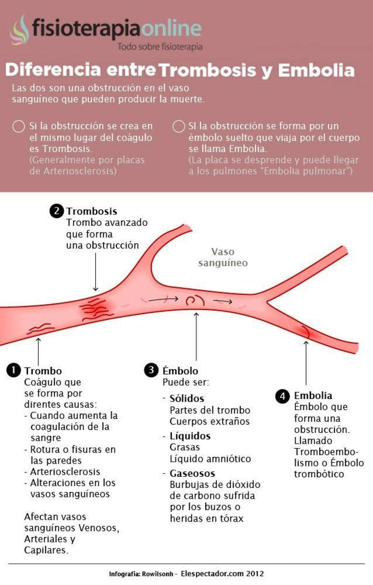 Trombosis o embolia