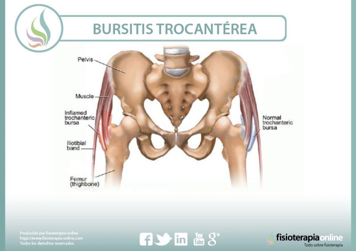 Conoce la bursitis trocantérea o trocanteritis
