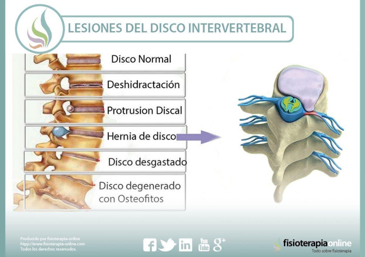 Lesiones más frecuentes del disco intervertebral | FisioOnline