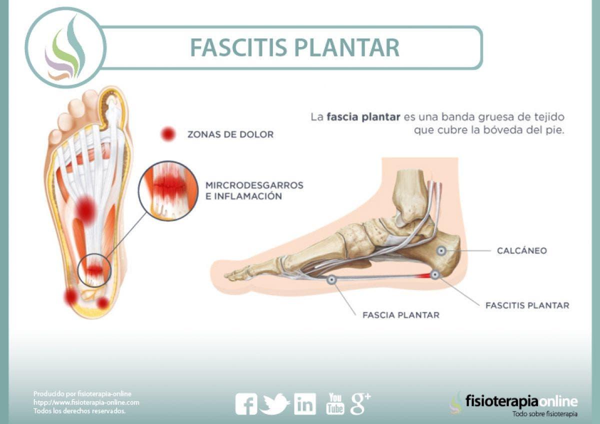 Fascitis plantar. Qué es, cuáles son sus causas y cómo podemos tratarla