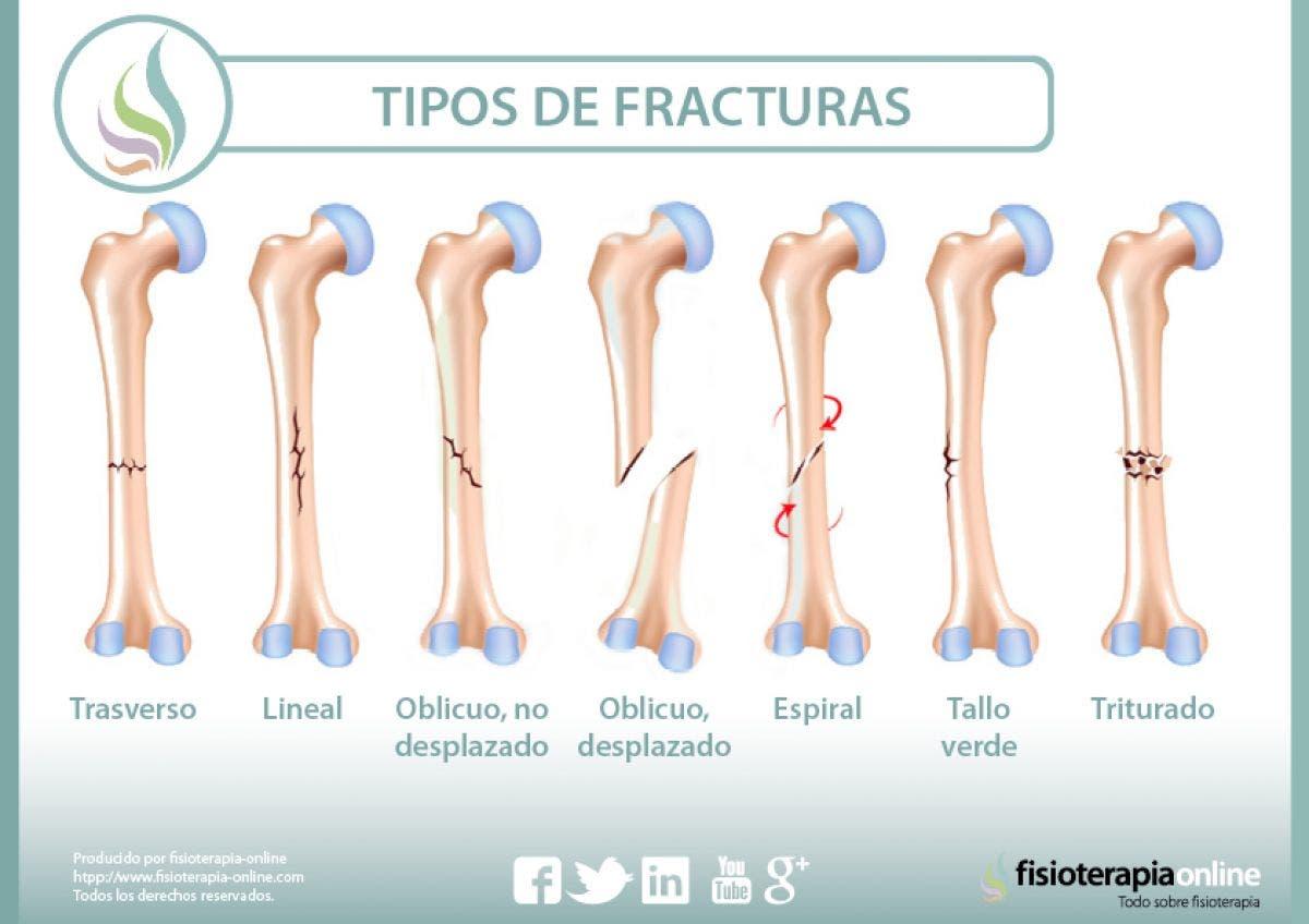 Fracturas óseas, tipos, cuidados y tratamiento
