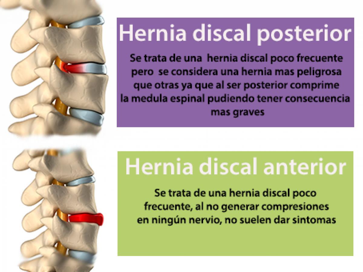 Las hernias discales pueden ser muy diferentes, aprende cómo son ...
