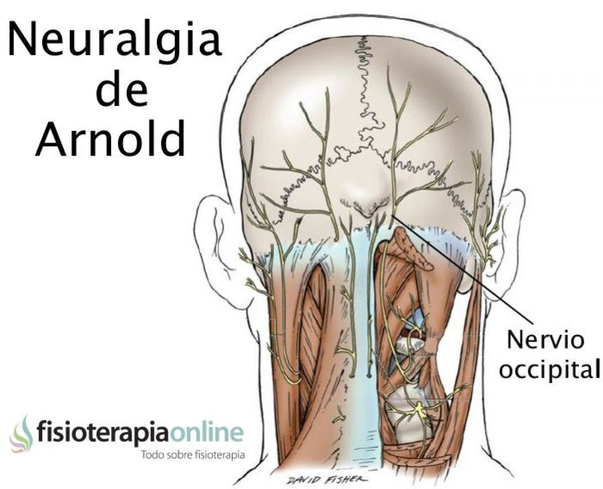 síntomas de dolor de cabeza neuralgia