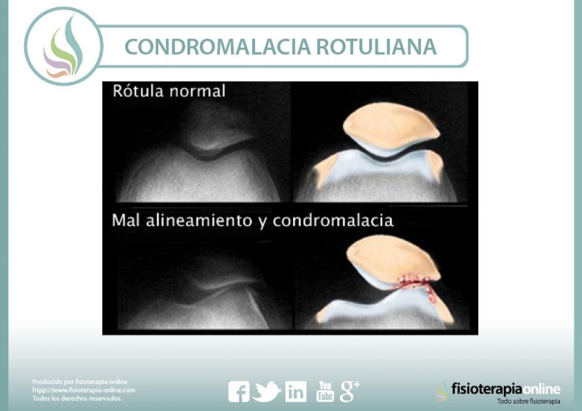 Condromalacia o condropatía rotuliana, causas, y tratamiento de una alteración mecánica