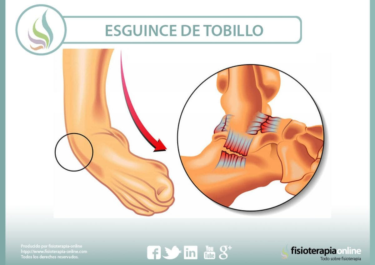 Esguince o torcedura de tobillo - 29 vídeos sobre esta lesión