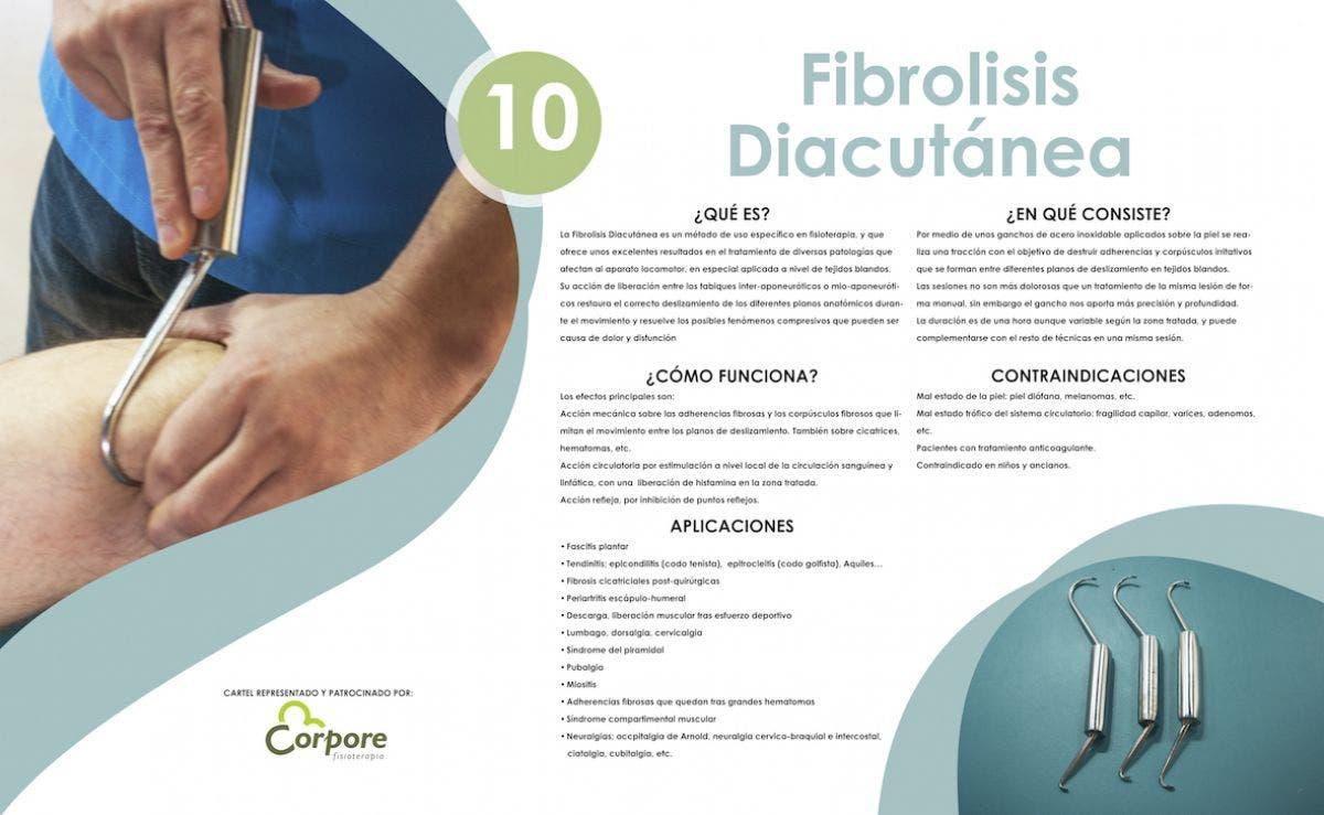 Fibrolisis Diacutanea o Técnica de ganchos. Te ayuda más de lo que te asusta
