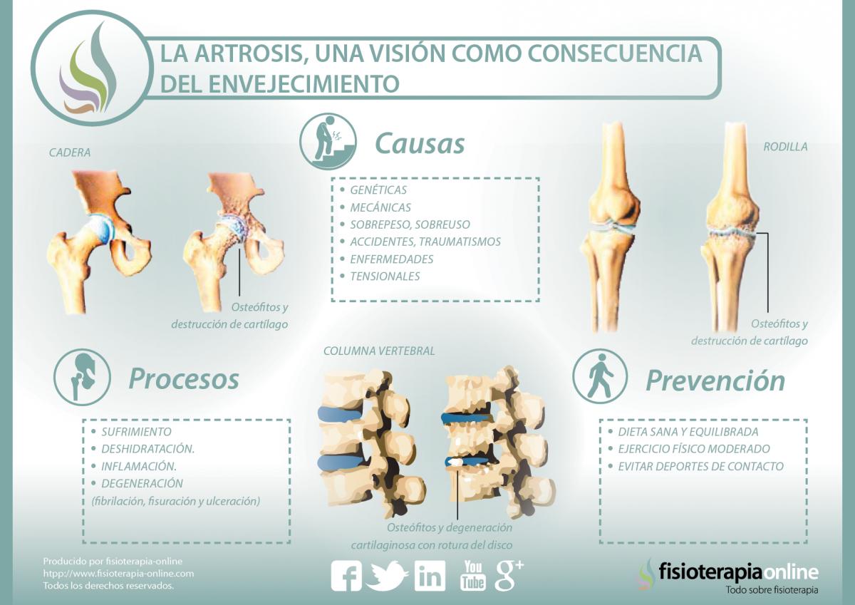 La artrosis, una visión como consecuencia del envejecimiento
