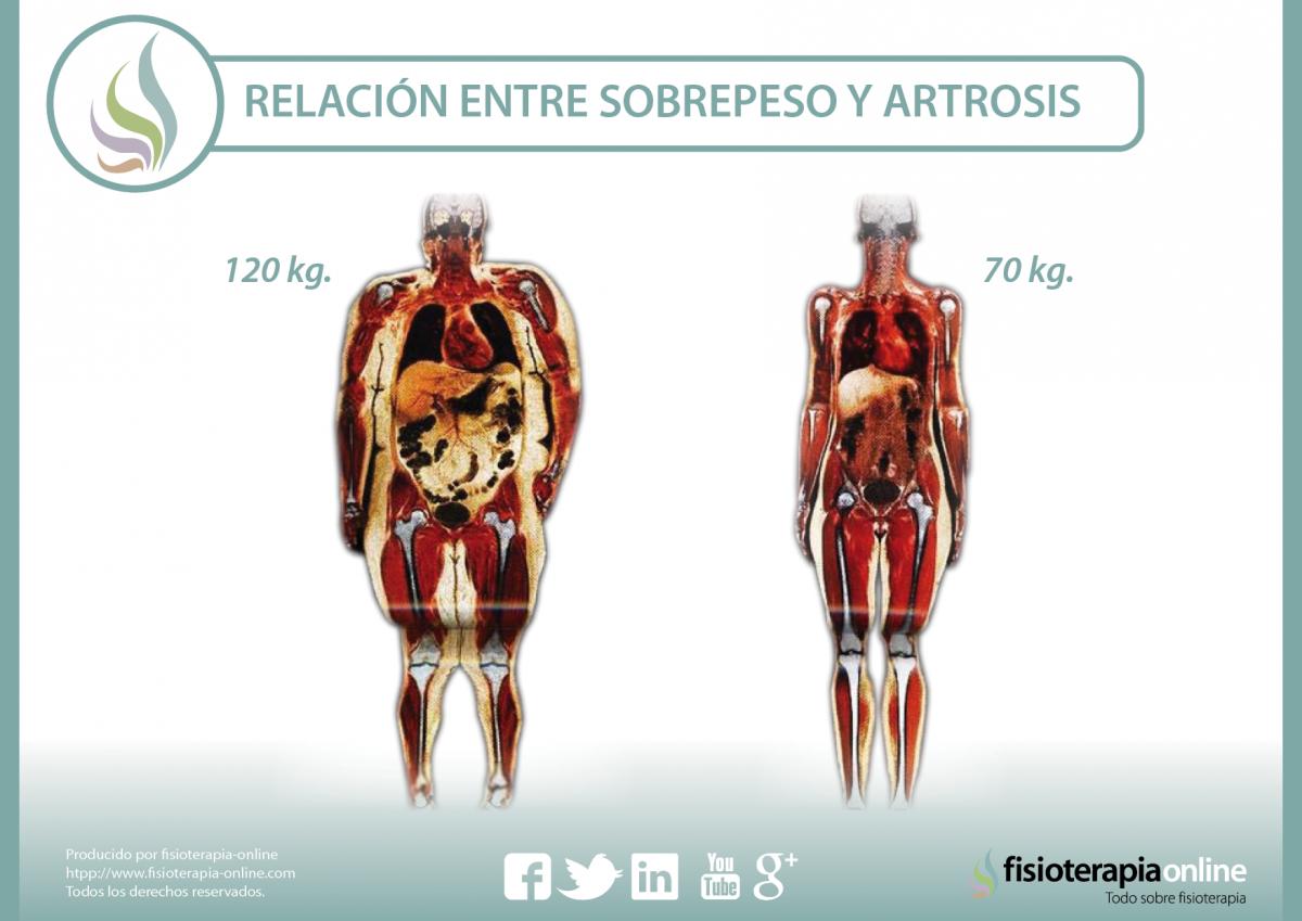Sobrepeso y artrosis