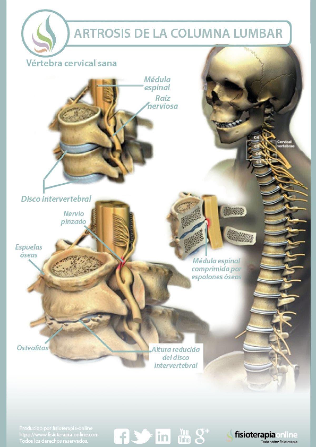 Explicando la artrosis