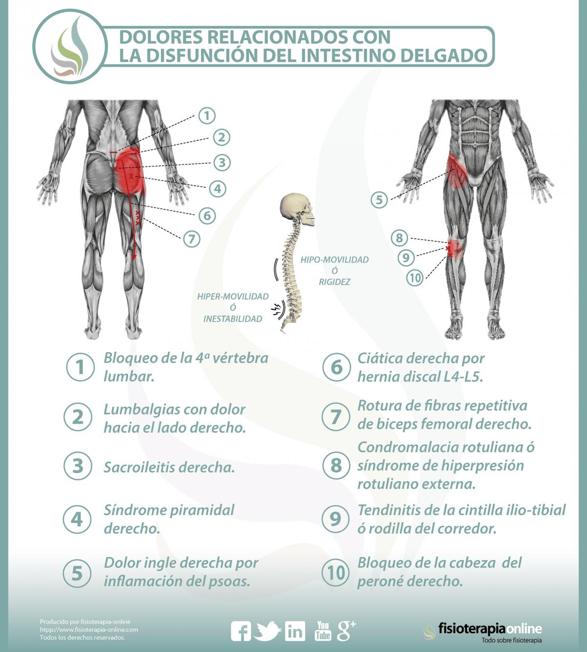 Relación del intestino delgado con el dolor de espalda