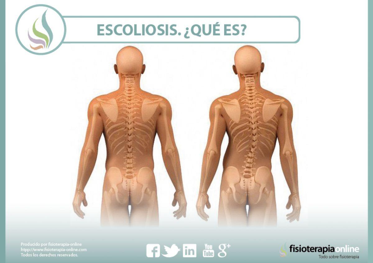 Escoliosis ¿Qué es? Tipos, causas y tratamiento