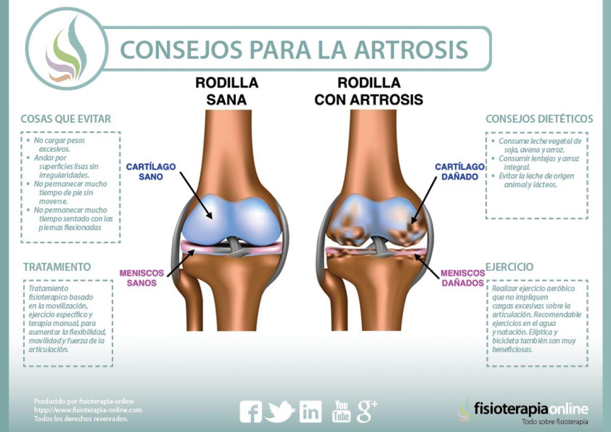 Consejos para tratar la artrosis