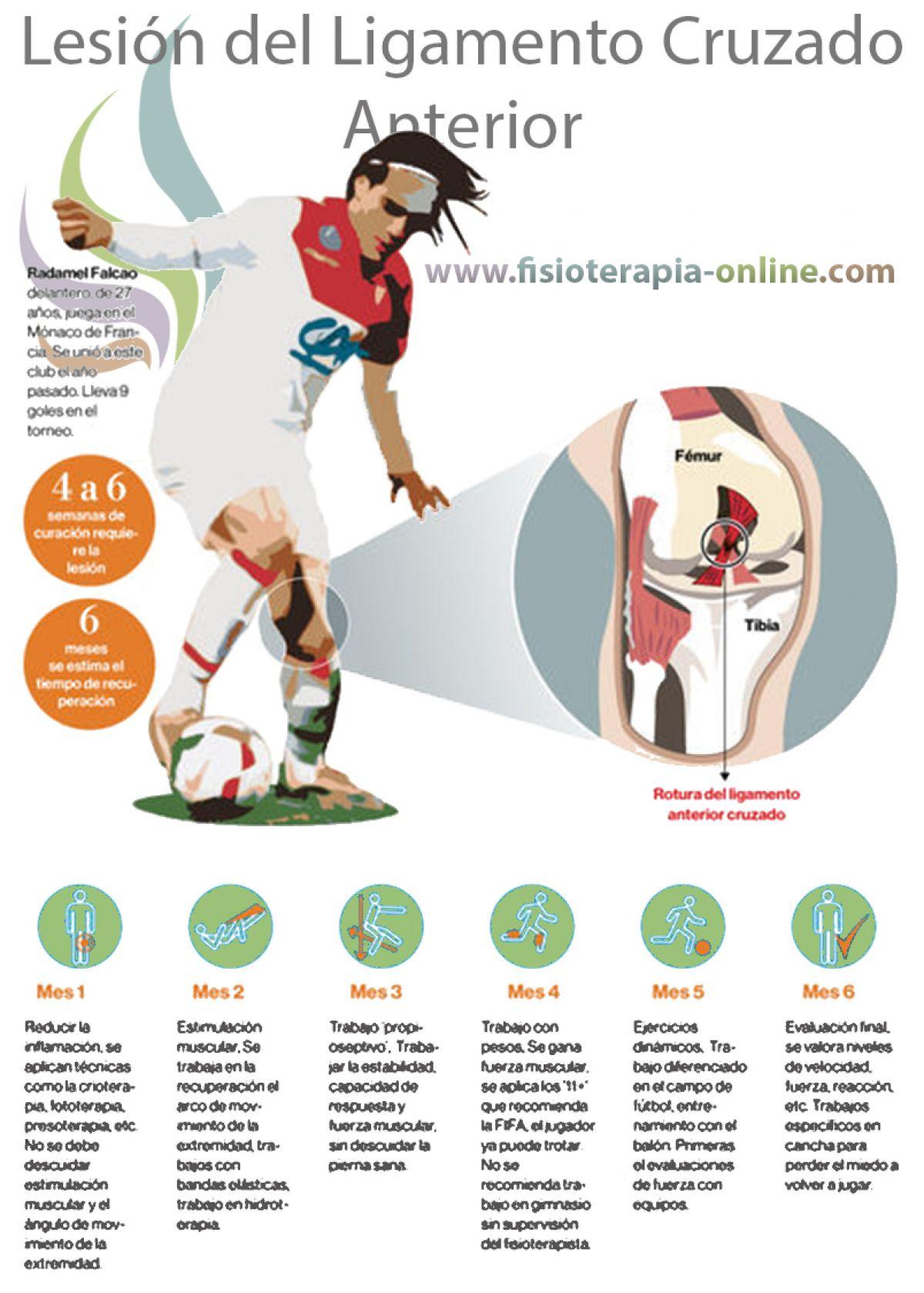 El castigo del futbolista, conoce todos los detalles sobre la lesión de ligamento cruzado de la rodilla