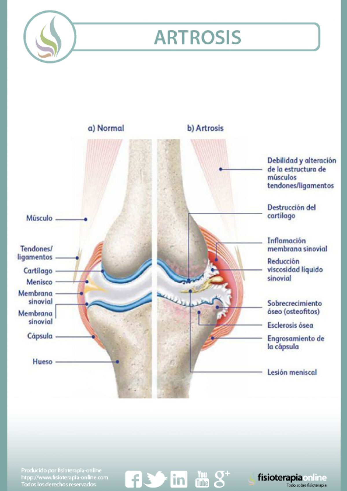 Artrosis, degeneración del cartílago articular, una serie de recomendaciones, reflexiones y consejos sobre el tema