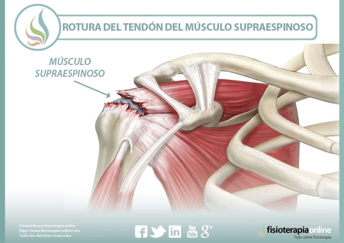 Rotura del tendón del músculo supraespinoso, información y consejos ...