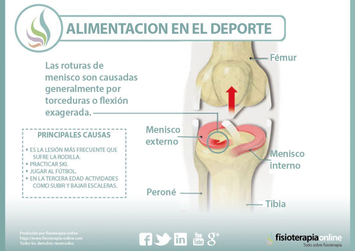 Causas, consecuencias y tratamiento de la rotura de menisco