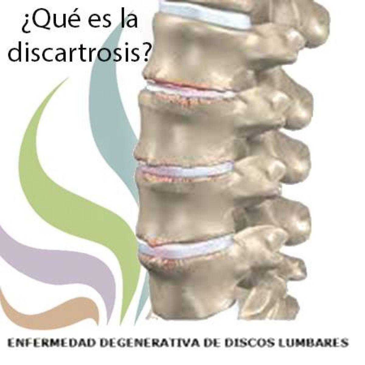 Una muy interesante información sobre qué es la discartrosis y cuáles son sus consecuencias