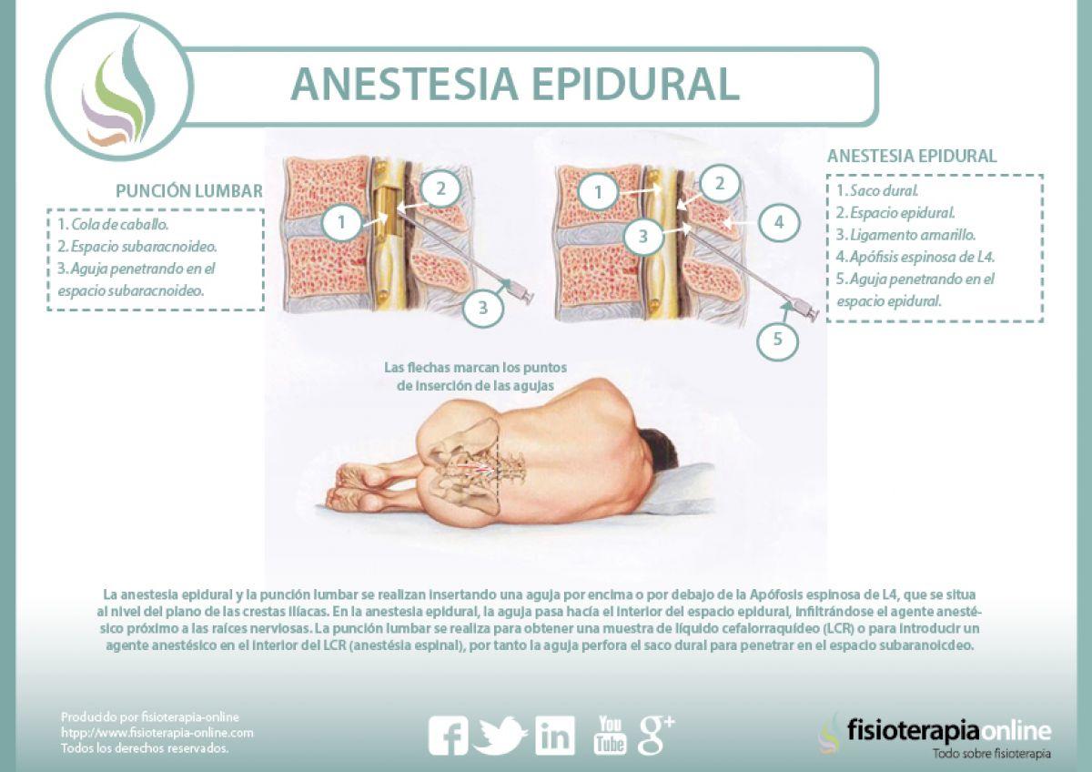 Anestesia epidural, descubre sus indicaciones y sus peligros
