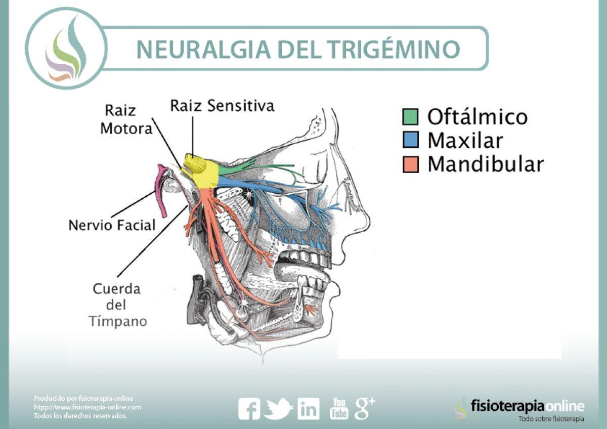 Neuralgia del trigémino. Un problema complejo