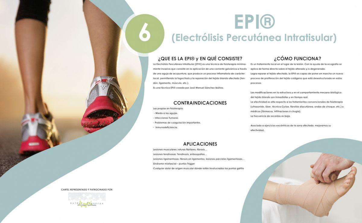 Electrolisis Percutanea Intratisular. ¿Qué es y qué puede hacer para ayudarte con tus lesiones?