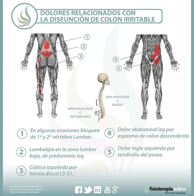 Relación entre el colon irritable y el dolor de espalda