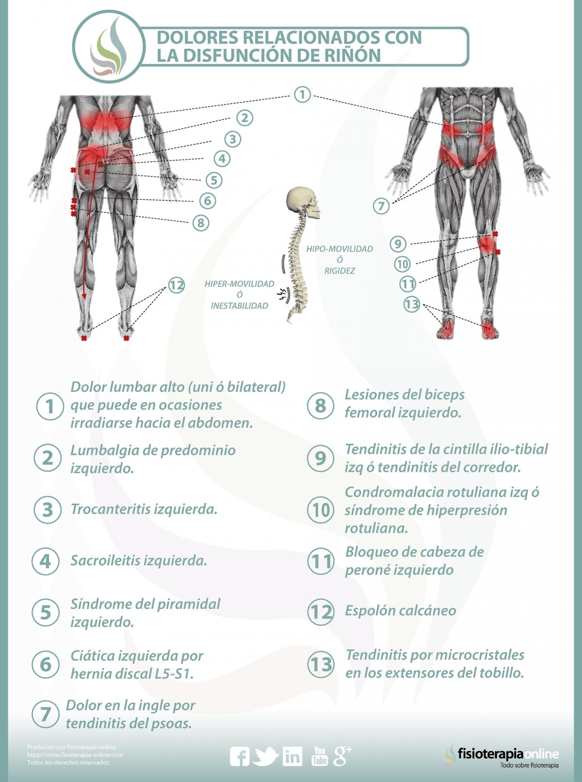 Relación entre el riñón y dolor de espalda