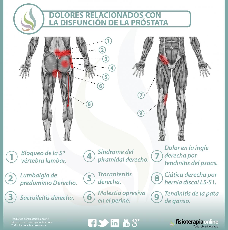 Relación entre próstata y dolor de espalda